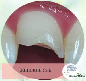 К чему снится выпавший зуб у себя без крови и боли для женщин thumbnail