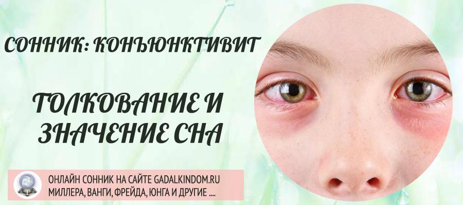 Сонник конъюнктивит