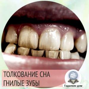 Гнилые зубы во сне, к чему снятся