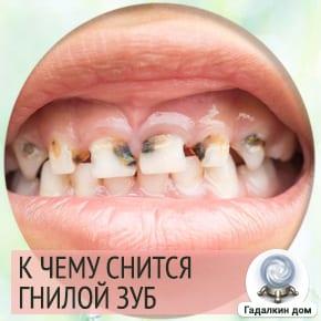 Сонник: гнилой зуб