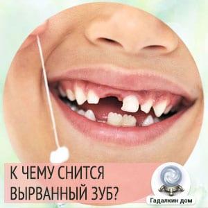 Сонник: вырванный зуб