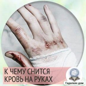 к чему снится кровь на руке